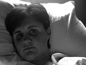 Kucharski in the hospital after surgery, October 2008. Photo courtesy Sarah Kucharski.
