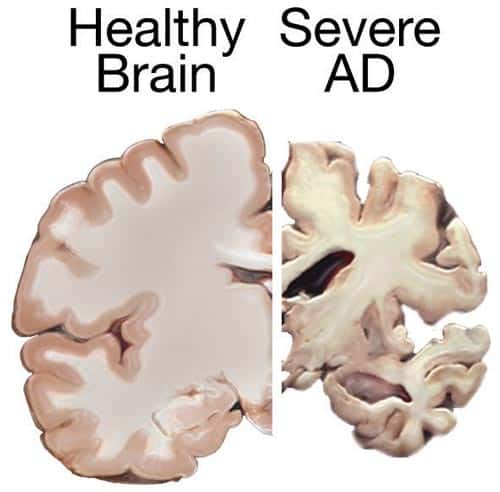 Alzheimer's On The Mind - Memory Loss Creeps In - North ...