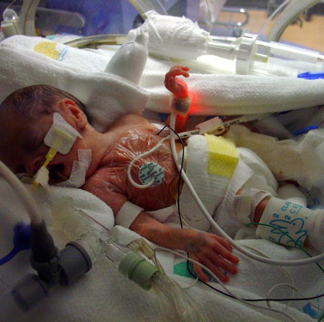 Lydia Nell in the neonatal intensive care unit after her surgery to remove most of her intestines due to necrotizing enterocolitis.